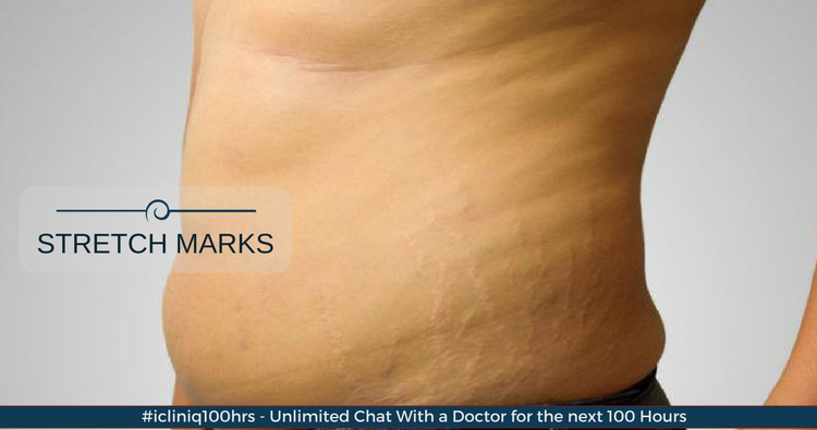 Cream Stretch Marks Price Features