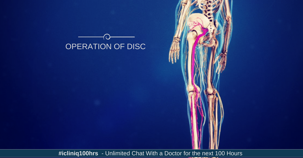 Is operation of disc necessary or can it be done by exercise?
