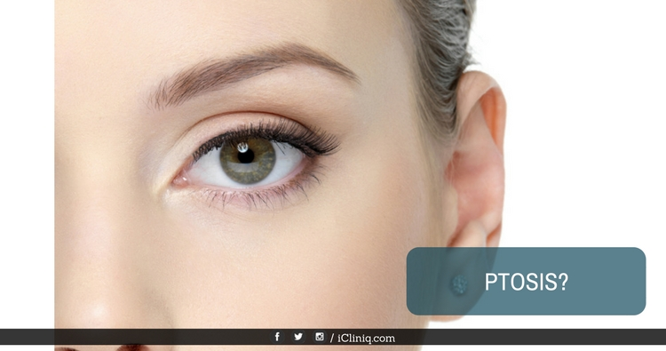 My eyelids seem to droop when I am relaxed. Could it be ptosis?
