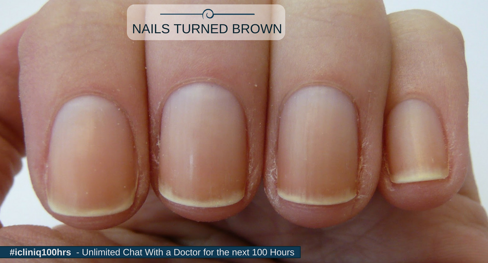 My skin around the nails turned brown. Why?