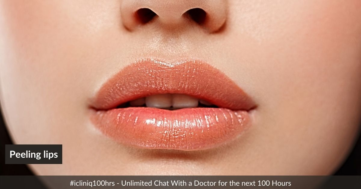 Will you suggest any treatment for peeling lips?