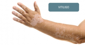 Will it be wise to use Melbild lotion for vitiligo?