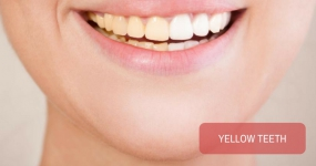 My teeth are yellow.Is scaling only a temporary process to clean the teeth?