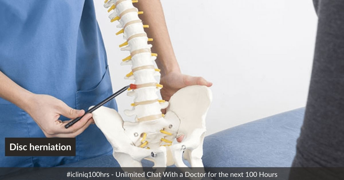 What are the treatment options for disc herniation other than chiropractor exercise?