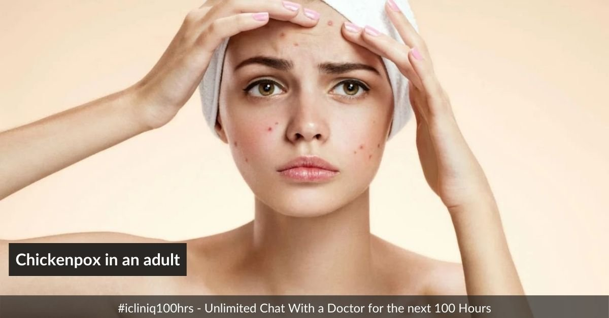 What are the treatments available for chickenpox in an adult?