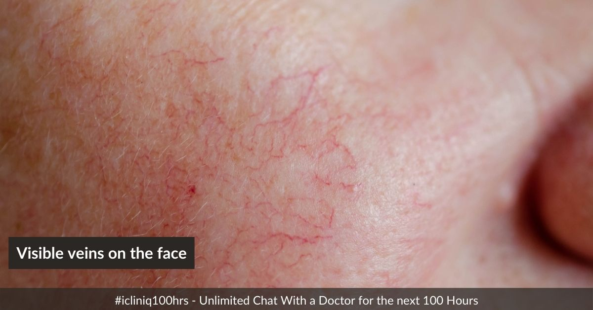 What are the ways to cure visible veins on the face?