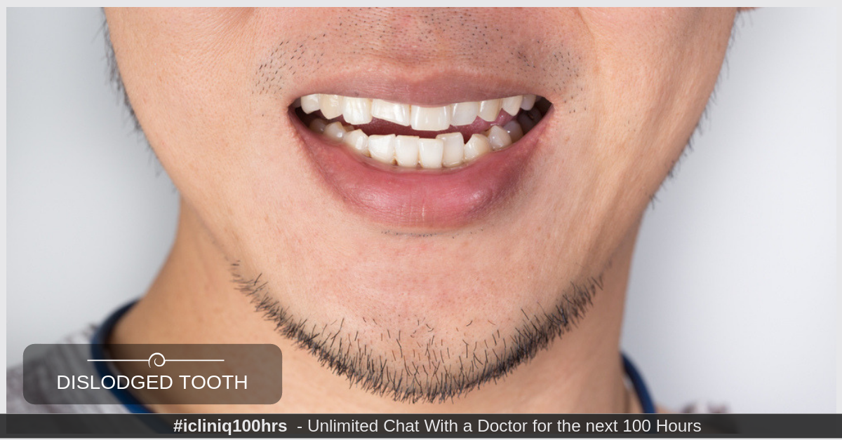 What can be done for dislodged tooth filling with a lump in gums?