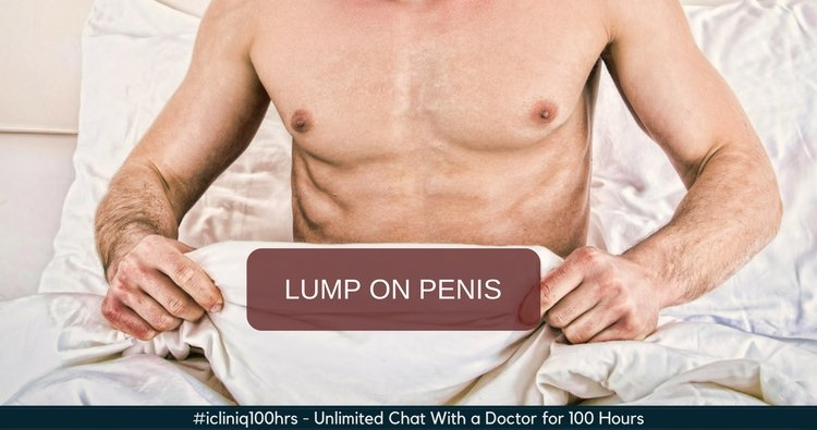 lump on penile shaft pictures