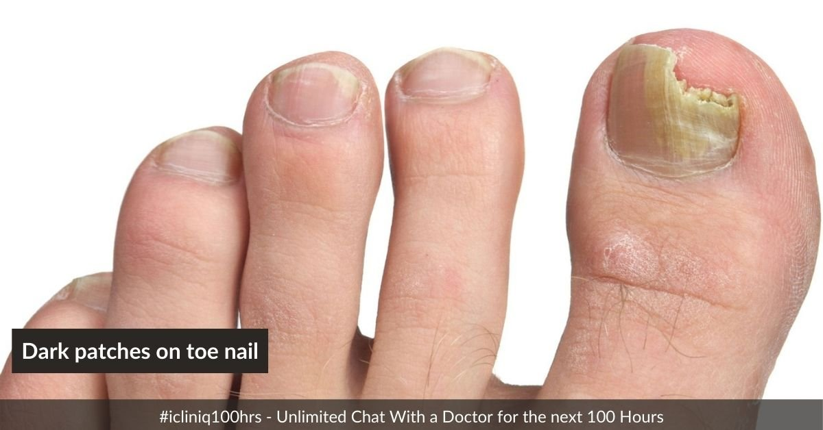 What could be the cause for dark patches on my toe nail?