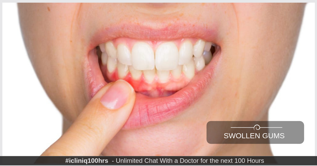What is the treatment available for swollen gums with sharp pain while eating or drinking?