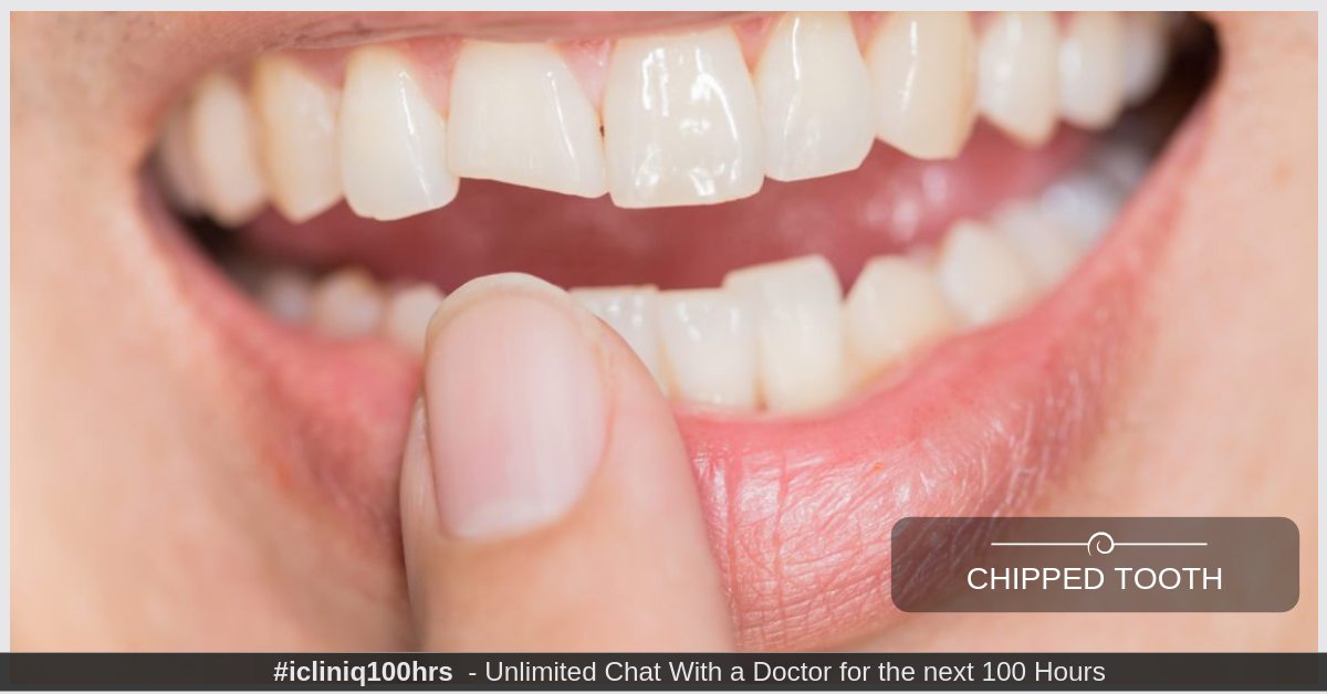 What is the treatment for chipped tooth that does not have any symptoms?