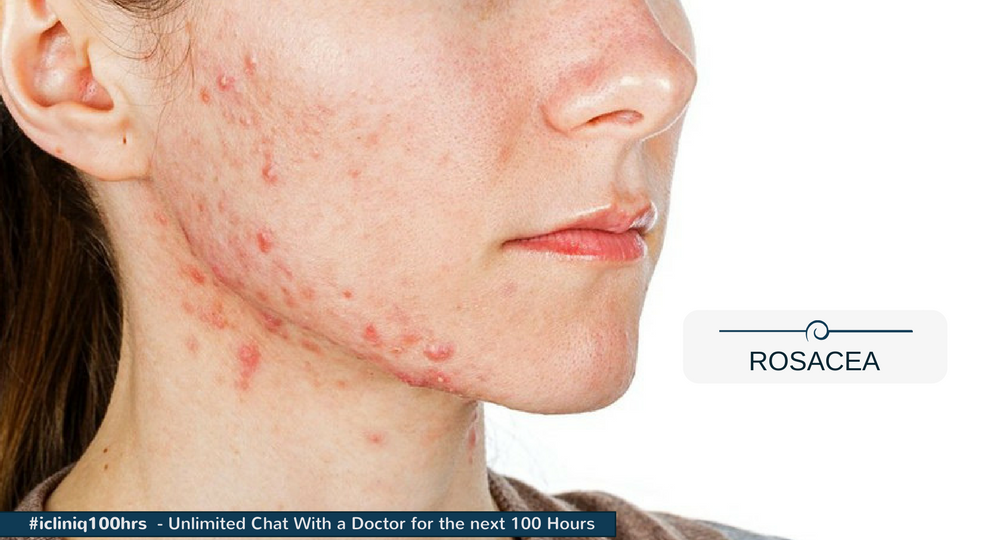 Which is the best peel for rosacea?