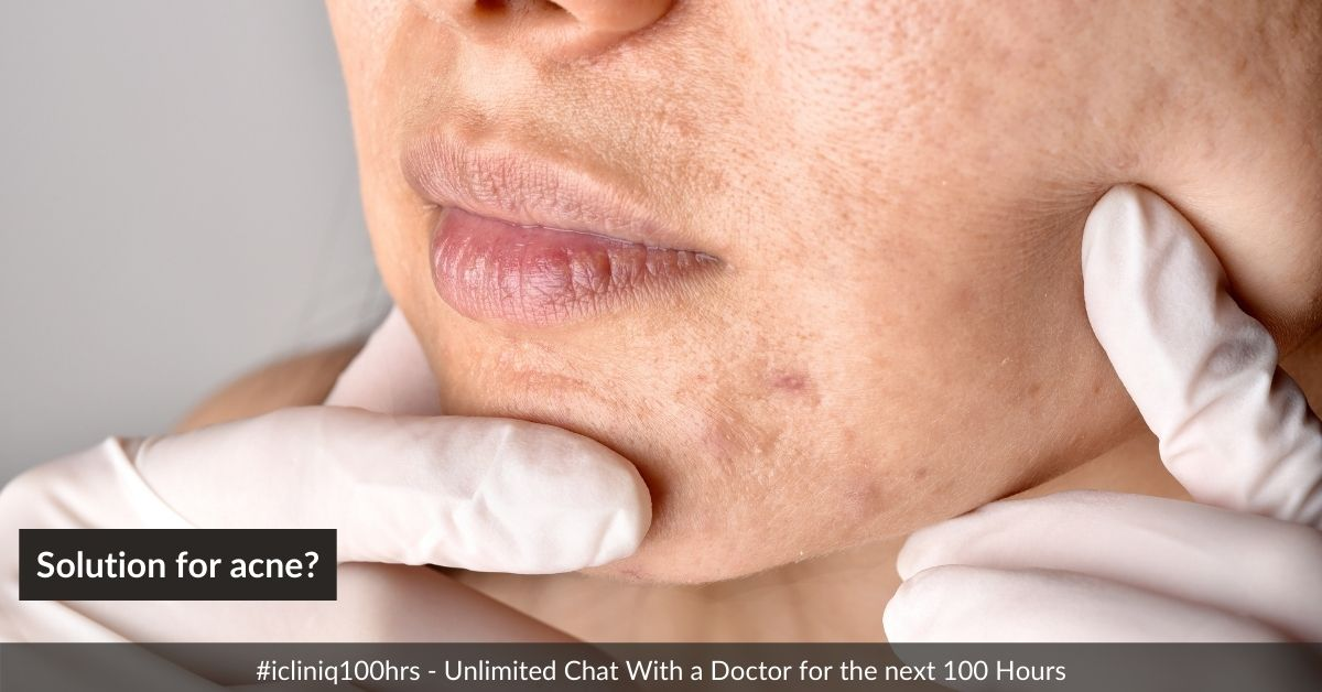 Without medicine or gel, how to get a permanent solution for acne?